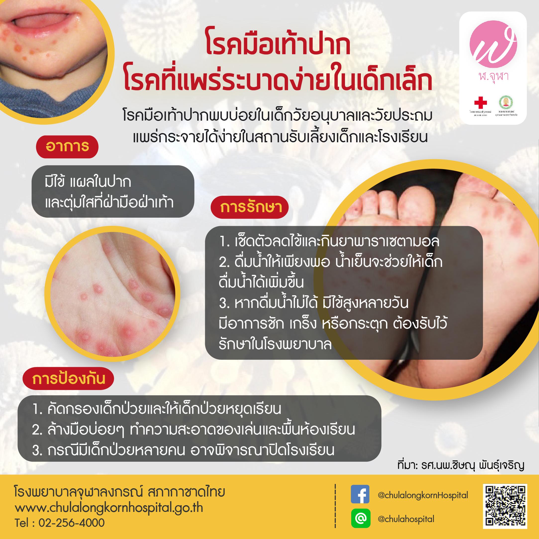 โรคมือเท้าปาก โรคที่แพร่ระบาดง่ายในเด็กเล็ก