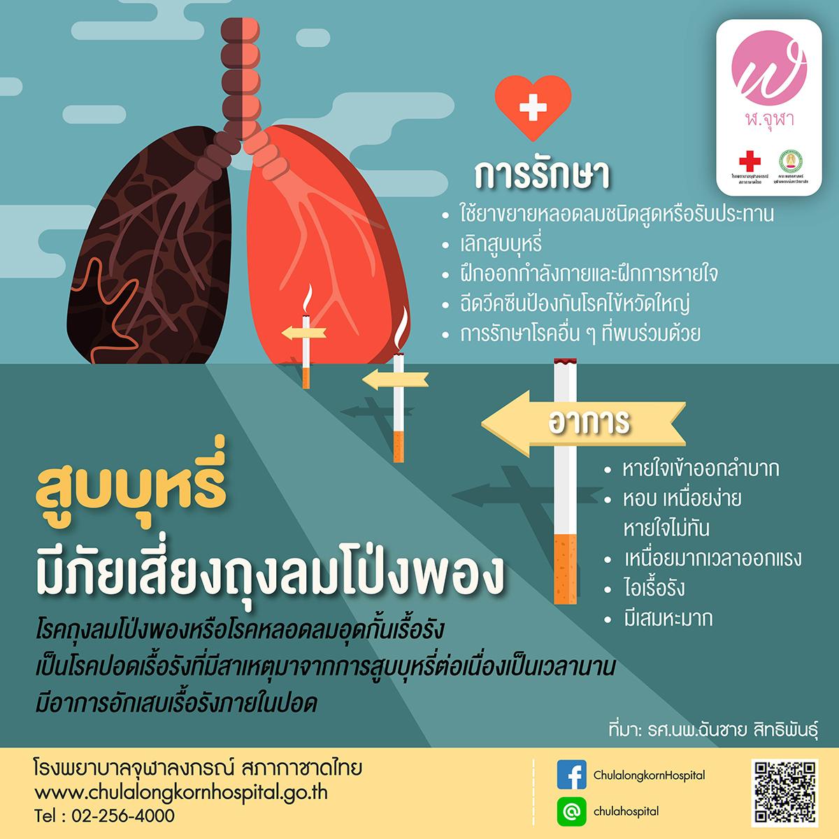 สูบบุหรี่ มีภัยเสี่ยงถุงลมโป่งพอง