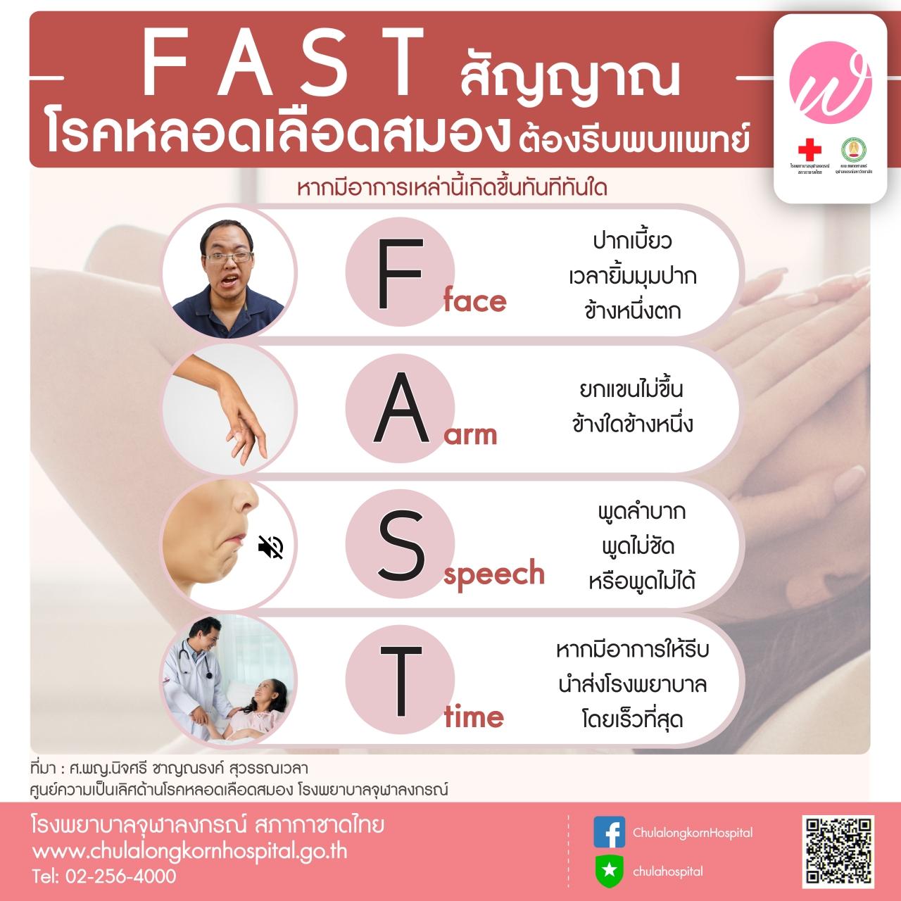 FAST สัญญาณ โรคหลอดเลือดสมอง ต้องรีบพบแพทย์