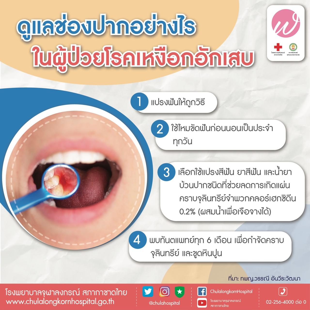 ดูแลช่องปากอย่างไร ในผู้ป่วยโรคเหงืออักเสบ