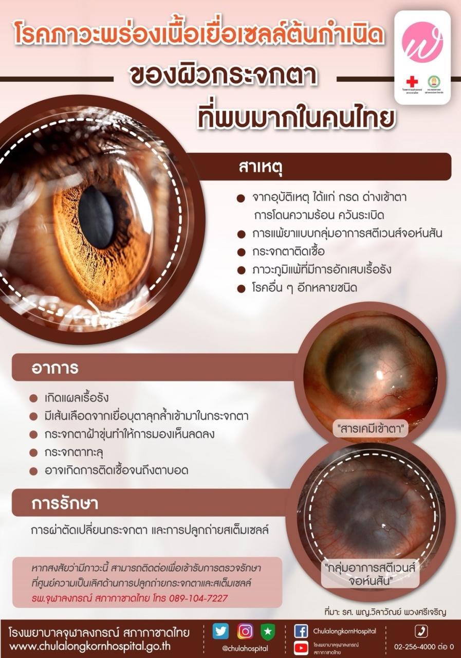 โรคภาวะพร่องเนื้อเยื่อเชลล์ต้นกำเนิดของผิวกระจกตาที่พบมากในคนไทย