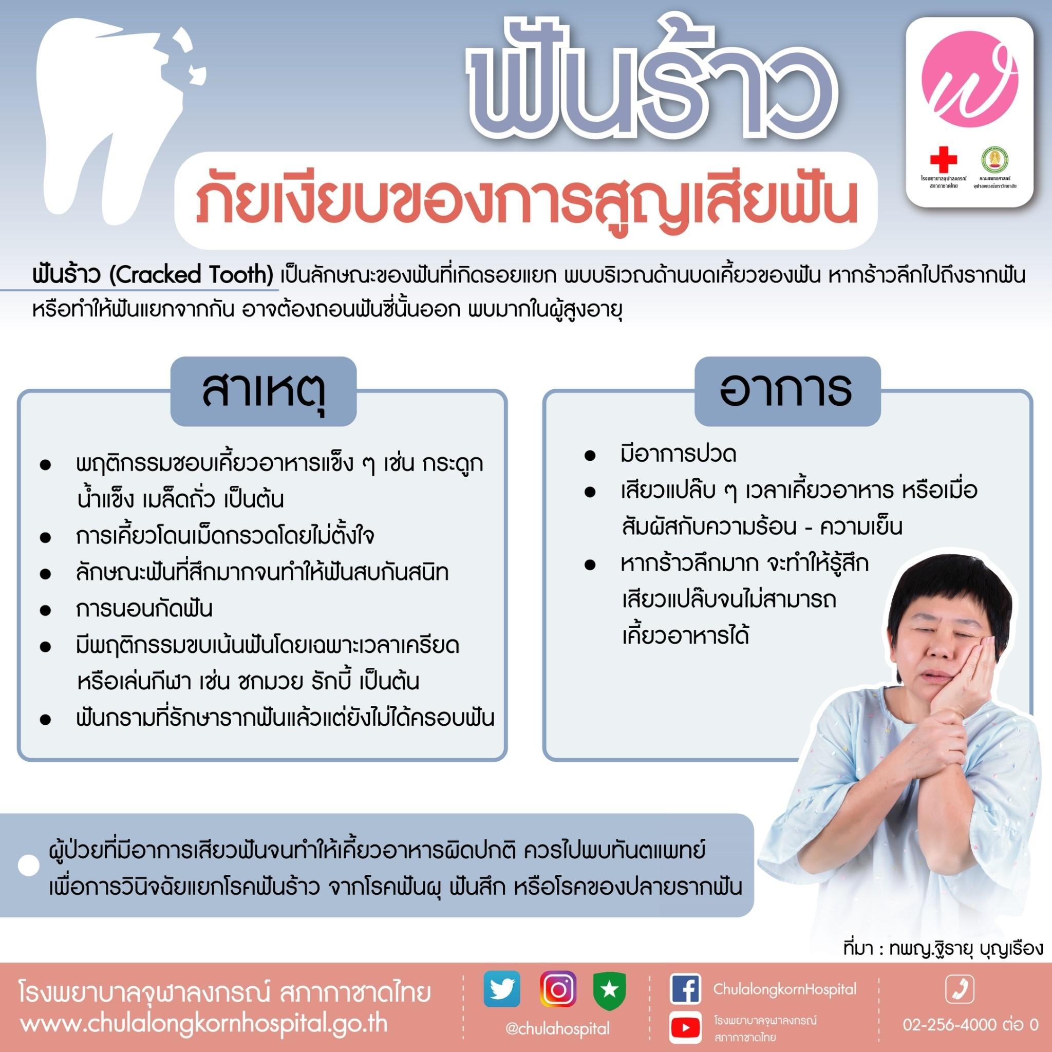 ฟันร้าว ภัยเงียบของการสูญเสียฟัน