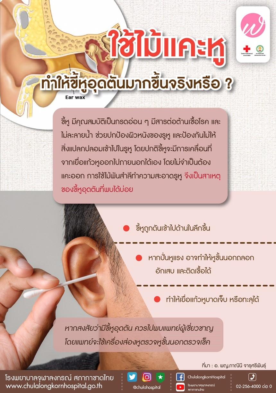 ใช้ไม้แคะหู ทำให้ขี้หูอุตตันมากขึ้นจริงหรือ?