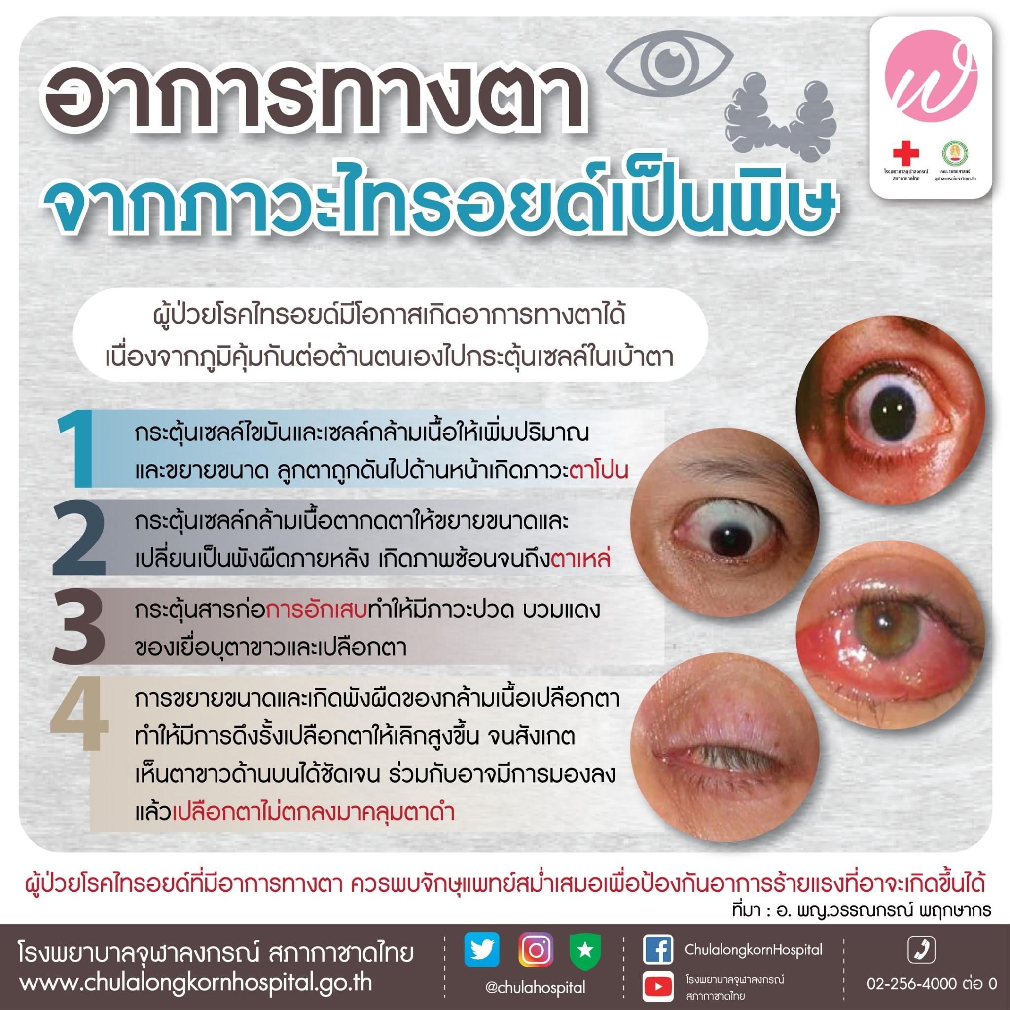 อาการทางตา จากภาวะไทรอยด์เป็นพิษ
