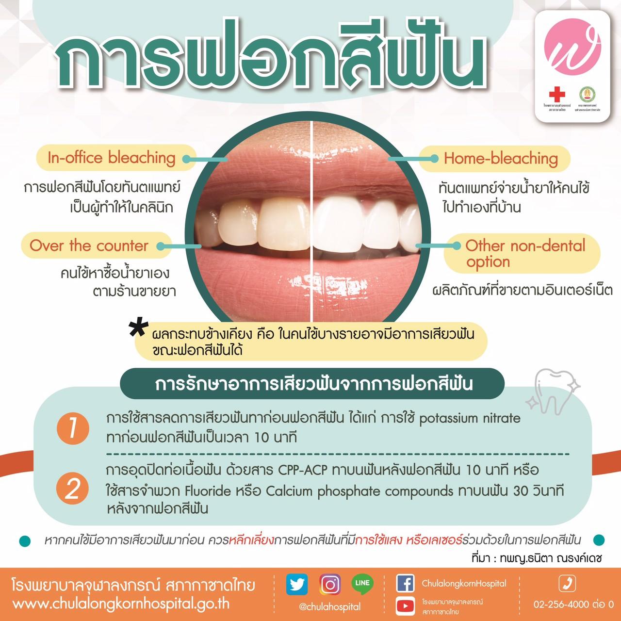 การฟอกสีฟัน