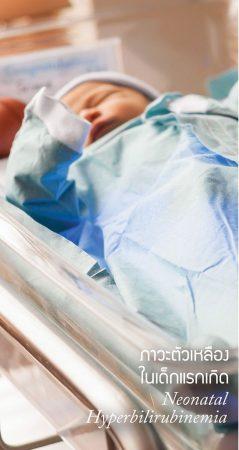 ภาวะตัวเหลืองในเด็กแรกเกิด