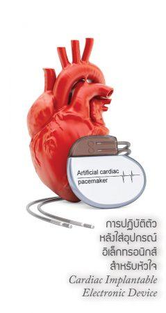 การปฎิบัติตัวหลังใส่อุปกรณ์อิเล็กทรอนิกส์สำหรับหัวใจ