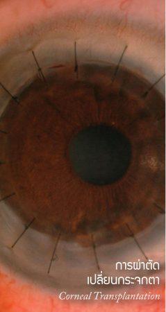 การผ่าตัดเปลี่ยนกระจกตา