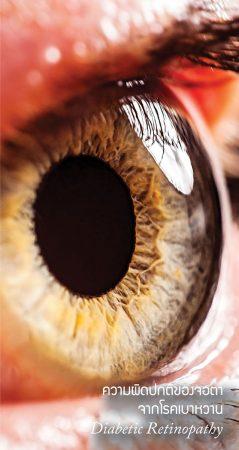 ความผิดปกติของจอตาจากโรคเบาหวาน