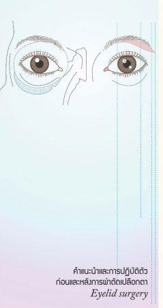 คำแนะนำการปฏิบัติตัวก่อนและหลังการผ่าตัดเปลือกตา