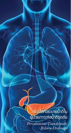 การใส่ท่อระบายน้ำดีในผู้ป่วยภาวะท่อน้ำดีอุดตัน