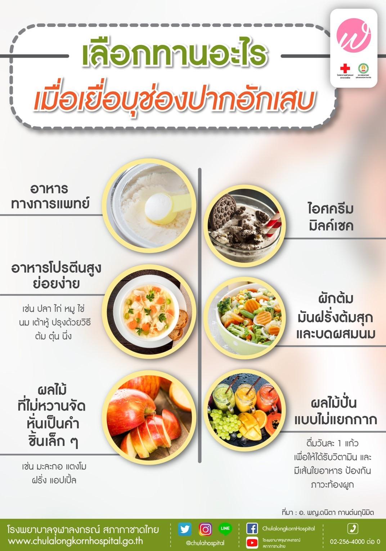 เลือกทานอะไร เมื่อเยื่อบุช่องปากอักเสบ