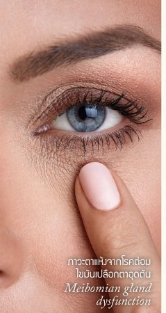 ภาวะตาแห้งจากโรคต่อมไขมันเปลือกตาอุดตัน