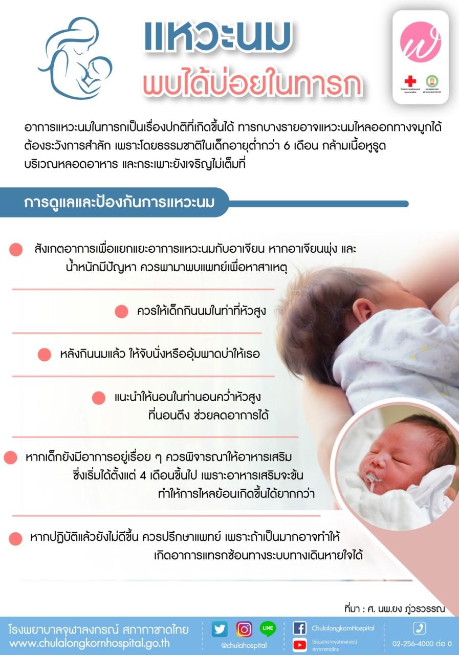 แหวะนม พบได้บ่อยในทารก