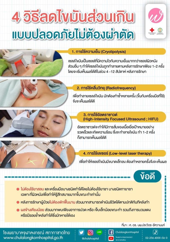 4 วิธีลดไขมันส่วนเกินแบบปลอดภัยไม่ต้องผ่าตัด
