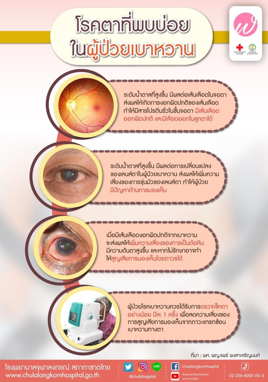โรคตาที่พบบ่อยในผู้ป่วยเบาหวาน