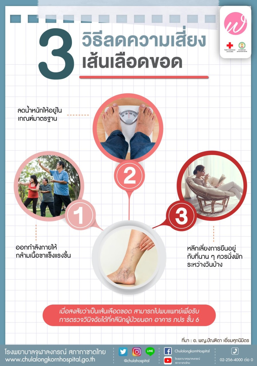 3 วิธีลดความเสี่ยงเส้นเลือดขอด