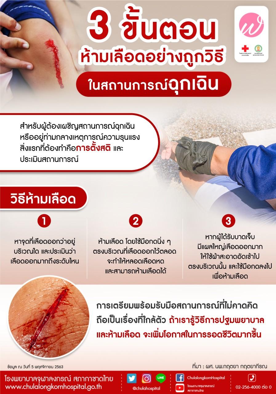 3 ขั้นตอน ห้ามเลือดอย่างถูกวิธีในสถานการณ์ฉุกเฉิน