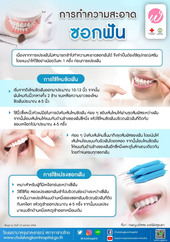 การทำความสะอาดซอกฟัน