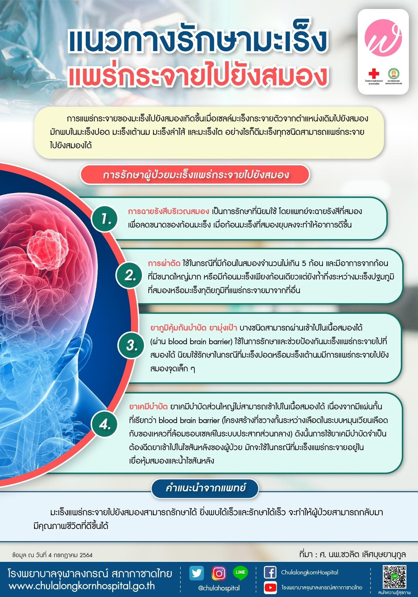 แนวทางรักษามะเร็งแพร่กระจายไปยังสมอง