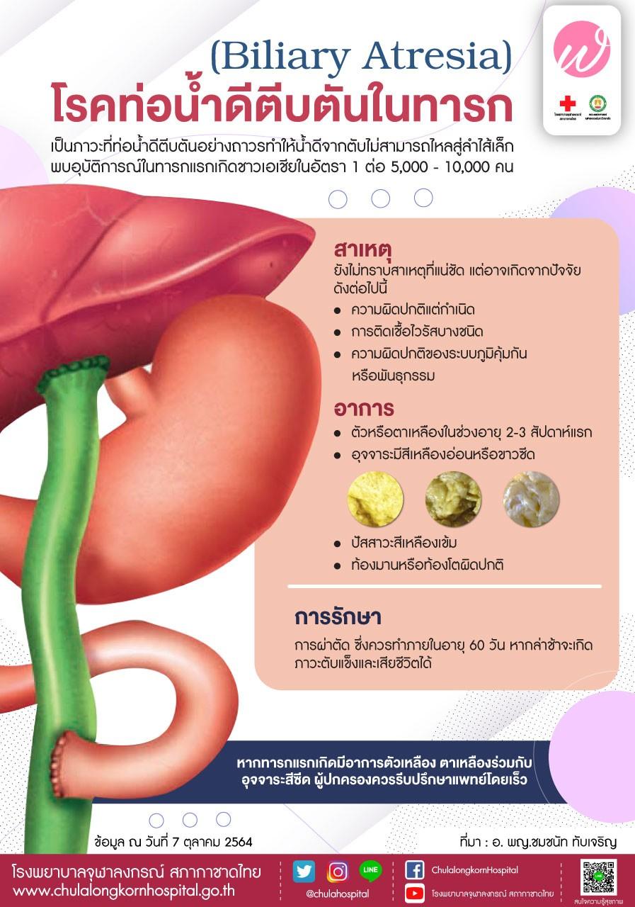 โรคท่อน้ำดีตีบตันในทารก (Biliary Atresia)